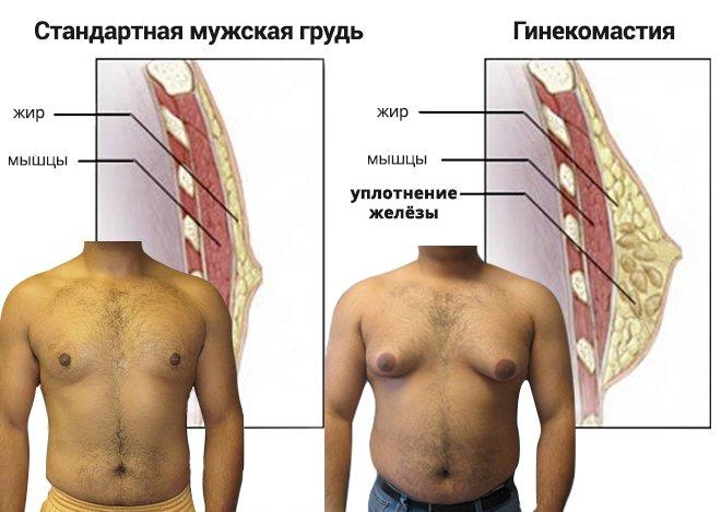 Гинекомастия -увеличение грудной железы у мужчин