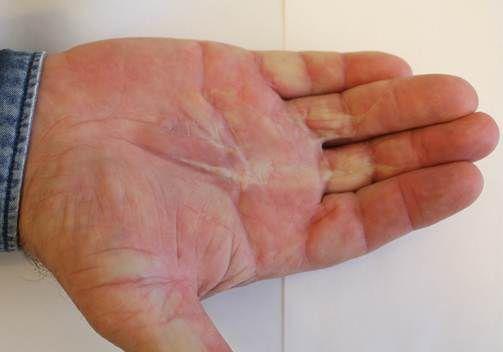 Контрактура пальцев рук