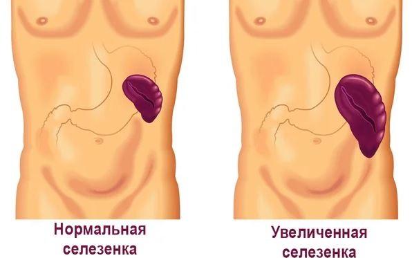 Признаки портальной гипертензии