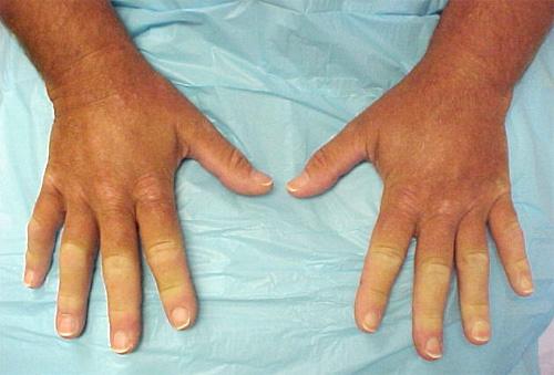 Онемение пальцев рук при болезни Рейно