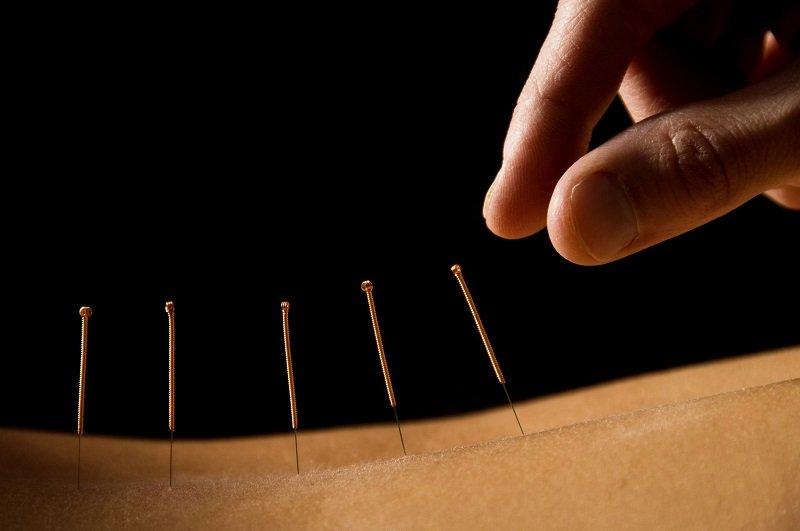 Иглоукалывание не купирует задержку эякуляции, оно снимает стресс и невроз.