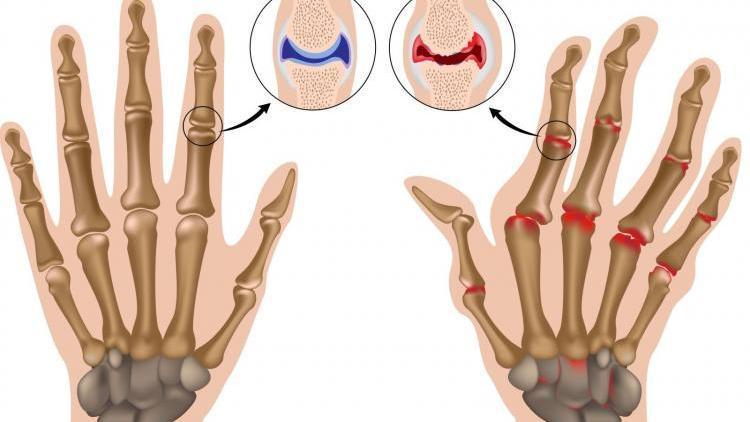 Посттравматический артроз пальцев рук
