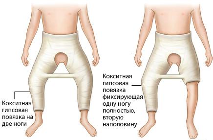 Лечение вывиха тазобедренного сустава