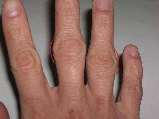 Артрит пальцев рук фото