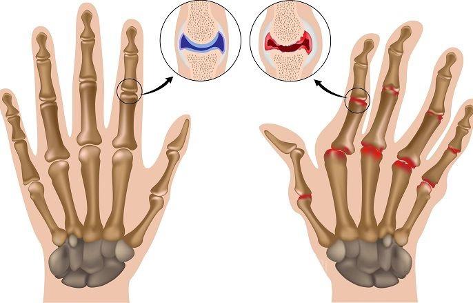 Болит рука при остеоартрозе