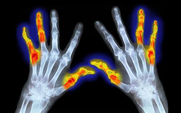 Исследования в области ревматоидного артрита