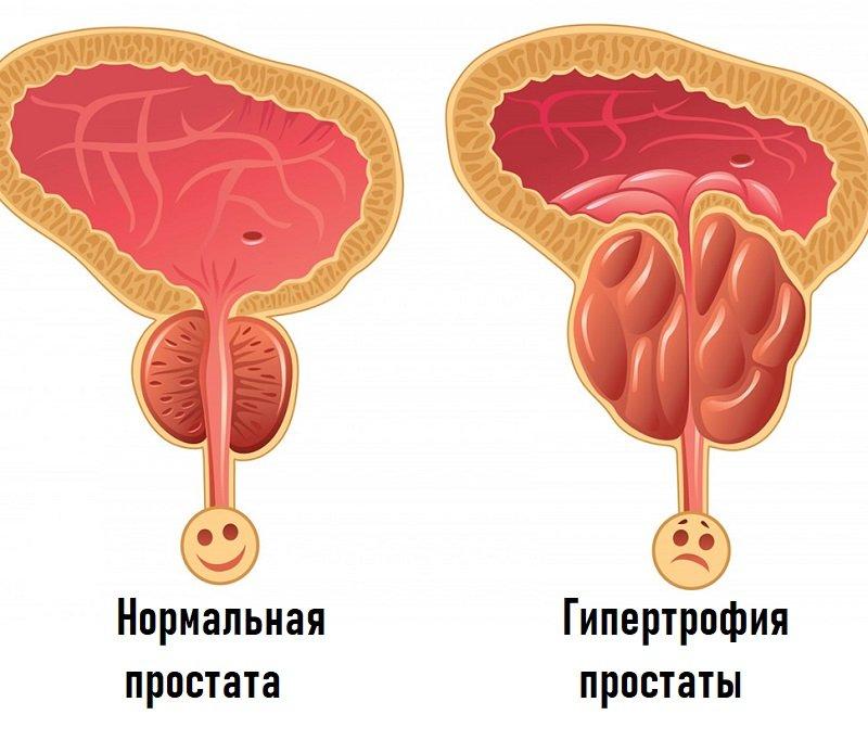В запущенных случаях оно полностью нарушает работу органов мочеполовой системы.