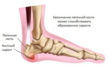 Болят ступни ног причина