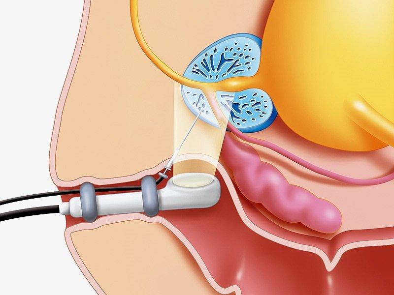 УЗИ позволяет оценить состояние и функциональность органа.
