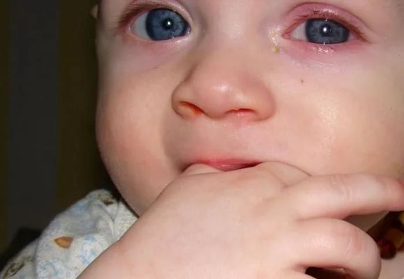 у ребенка воспален глаз