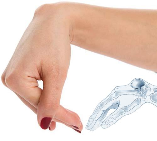 Шишки на руках и пальцах