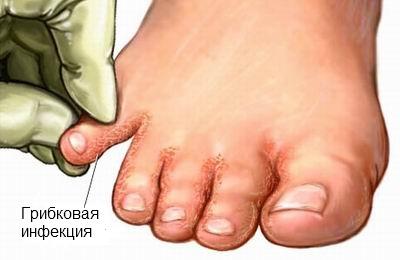 Грибковая инфекция на пальцах