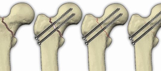 Операция при переломе шейки бедра