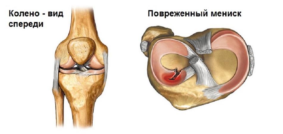Воспаление коленного сустава при повреждении мениска