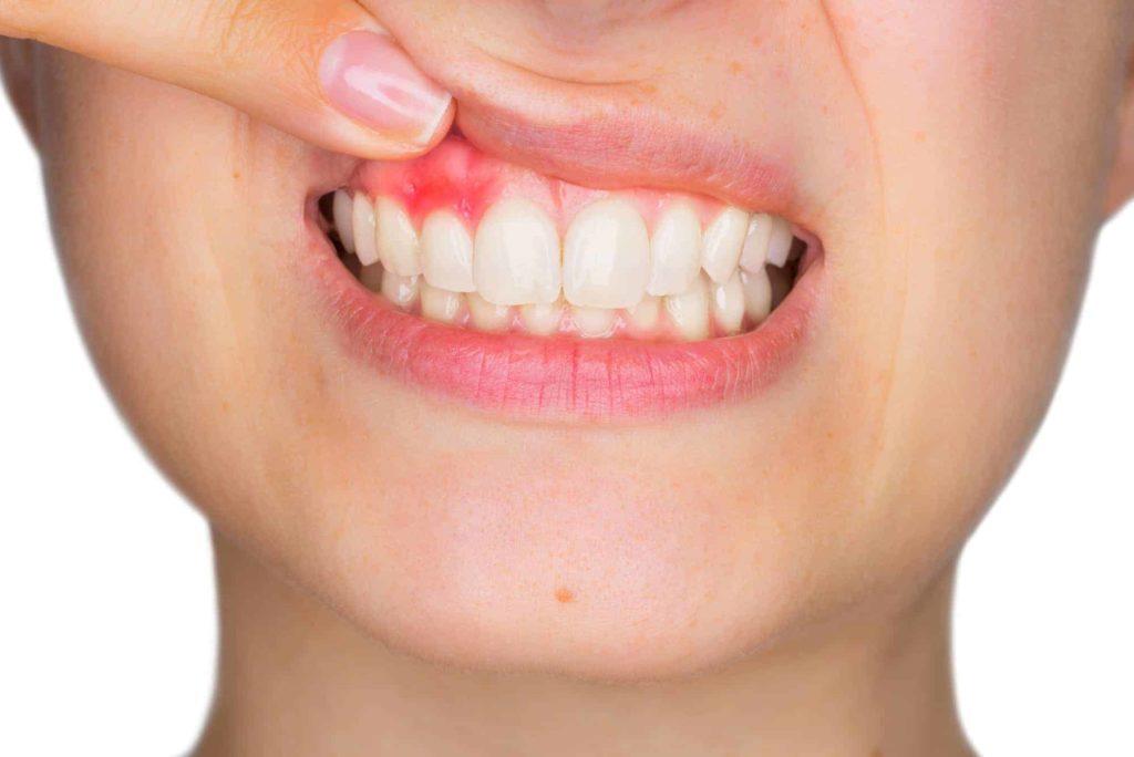 Раздражение от зубной пасты