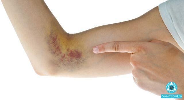 гематома зудит на руке