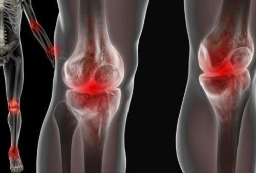 Реактивный артрит, патогенез
