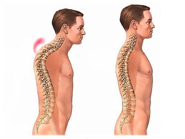 Осложнения компрессионного перелома позвоночника