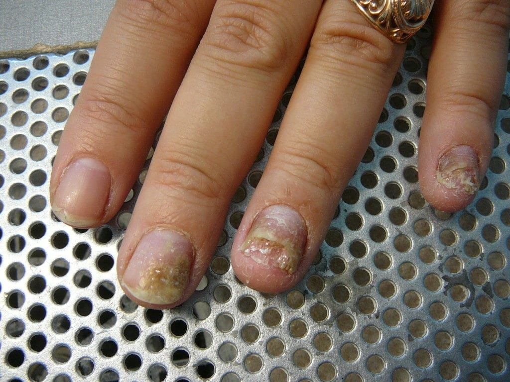Лечение грибка ногтей глицерином