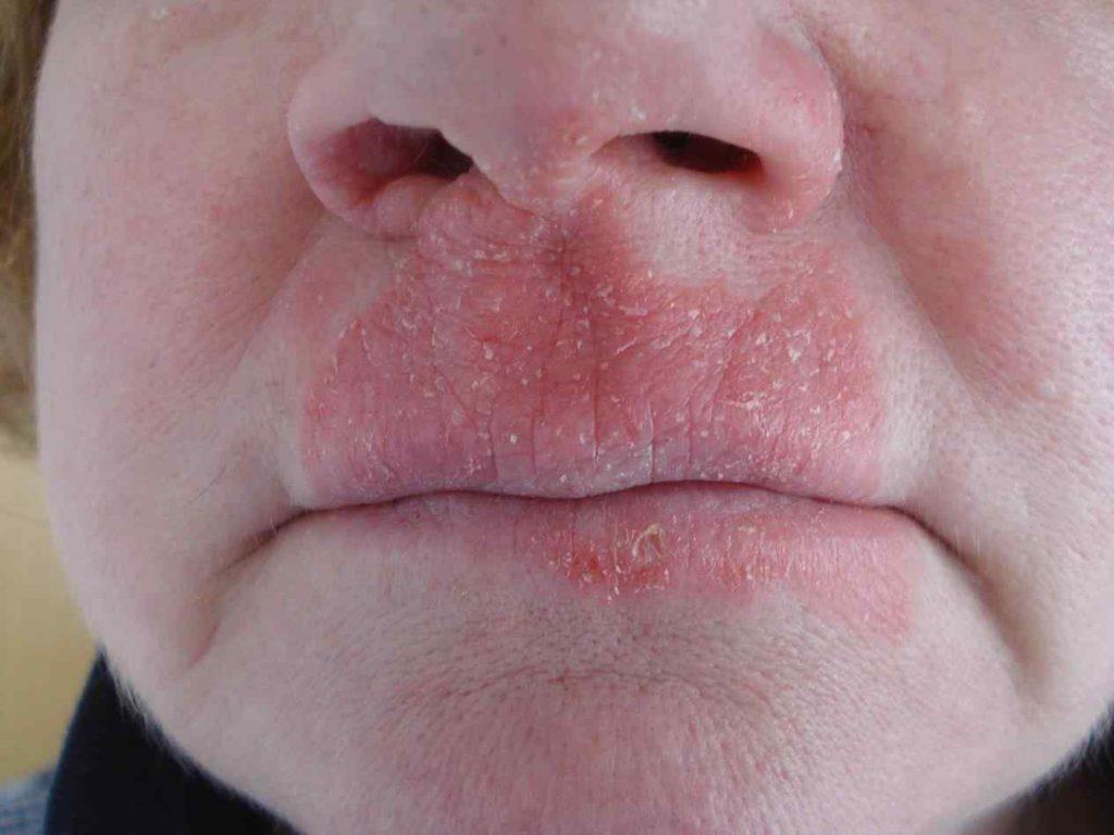 Симптомы грибка на лице