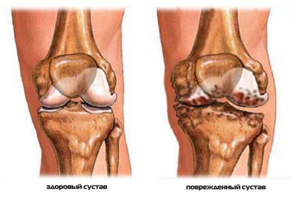 Воспалилось колено при артрите