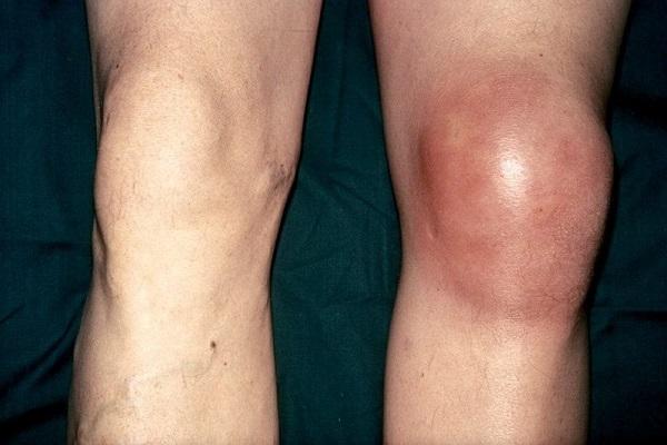 Отекает коленный сустав при септическом артрите