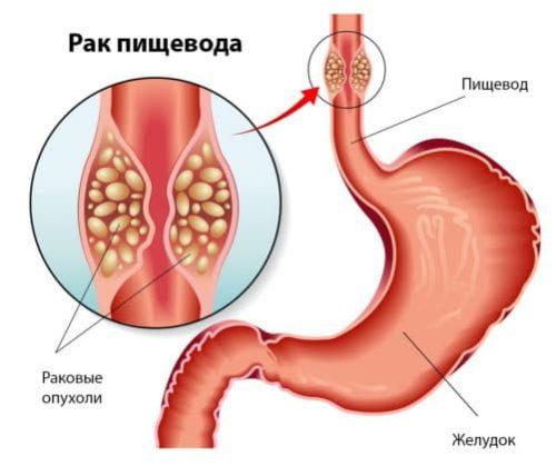Рак пищевода может стать причиной боли при глотании
