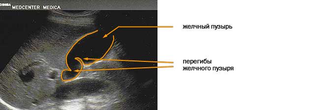 Диагностика деформации желчного пузыря