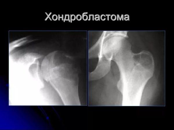 Отек бедра выше колена причины лечение thumbnail