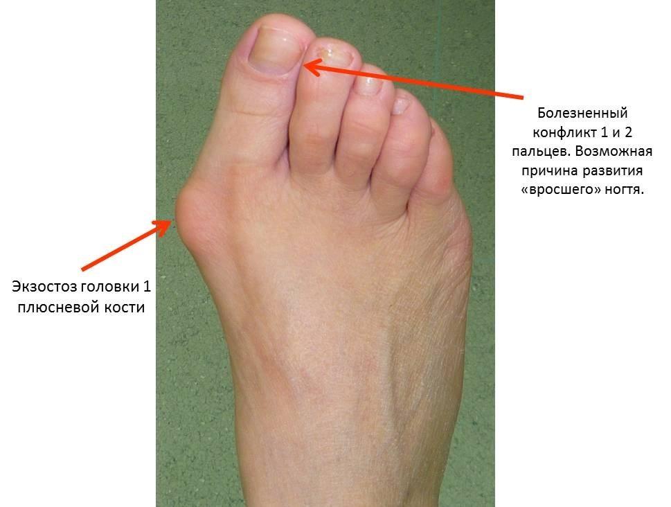Причины поперечного плоскостопия