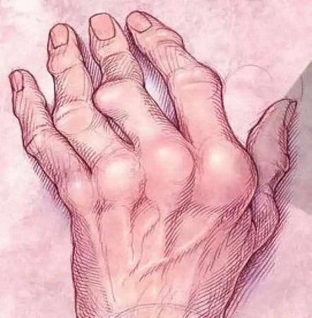 Симптомы полиартрита пальцев рук