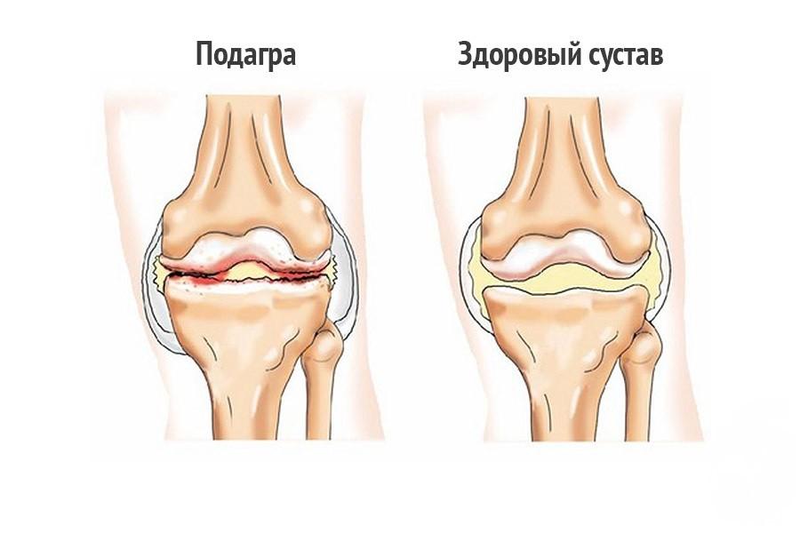 Отекает коленный сустав при подагре
