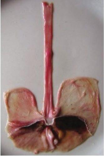 Ожог пищевода уксусной кислотой
