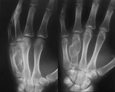 Как выглядит рак костей