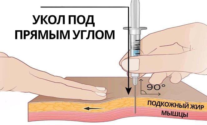 Как делать укол