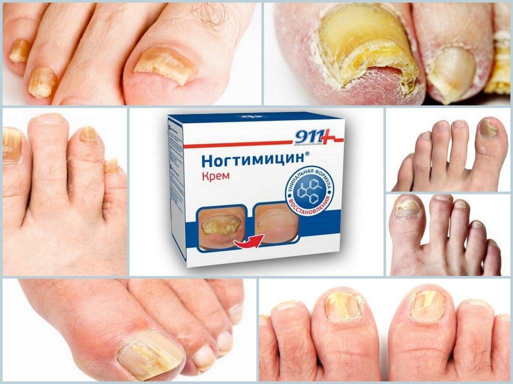 Средства для снятия ногтевой пластины с большого пальца ноги