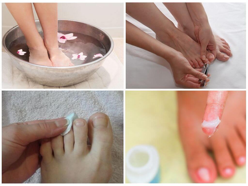 Как подготовить ногти для лечения уксусом