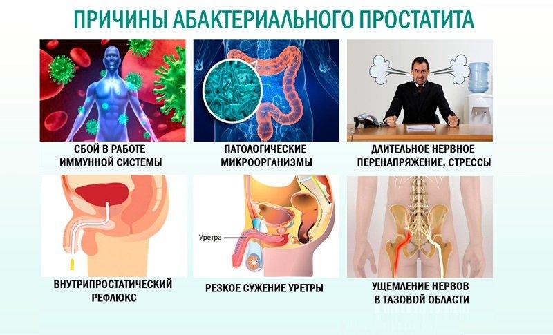 Если заболевание не лечить, то у мужчины разовьется хронический абактериальный простатит, при котором боли будут постоянными спутниками