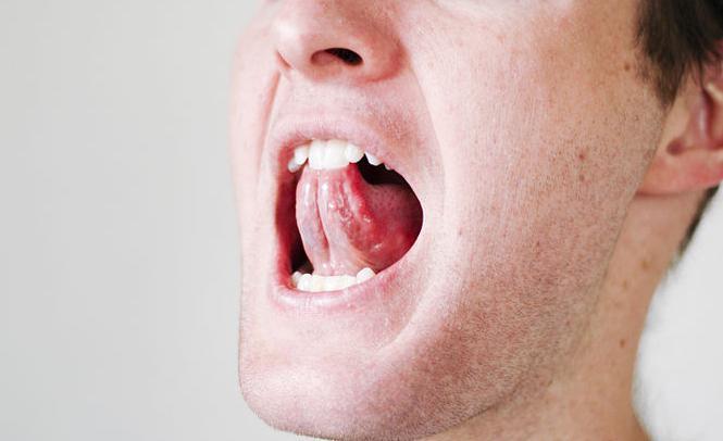 опухло под языком