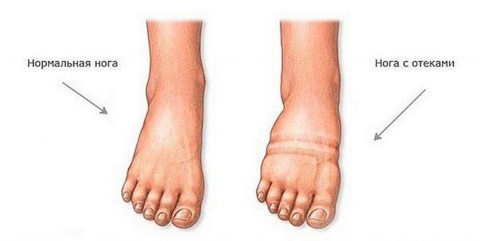 симптом отека ног