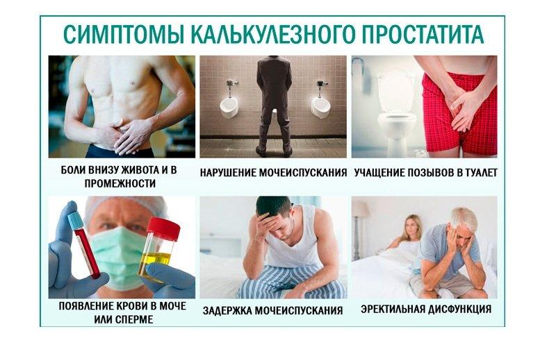 В тяжелых случаях, когда конкременты больших размеров назначается оперативное лечение.