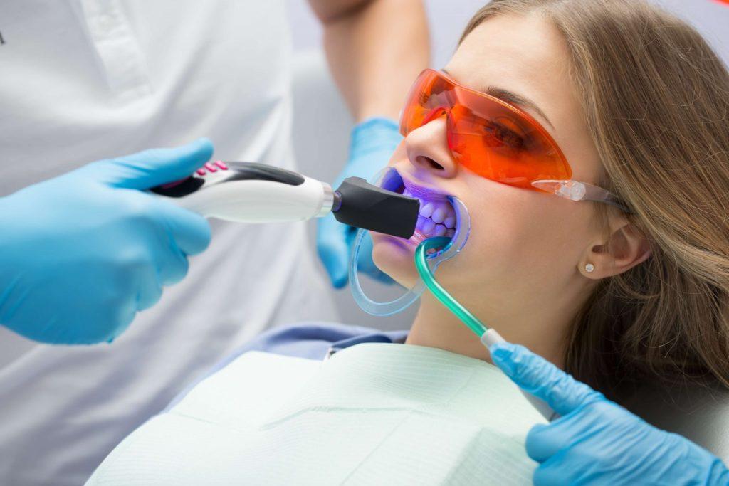 Отбеливание зубов лампой Beyond Polus