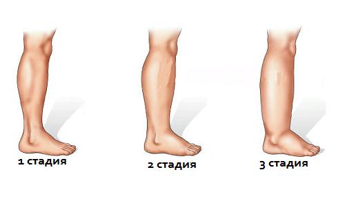 Опухает нога при лимфостазе