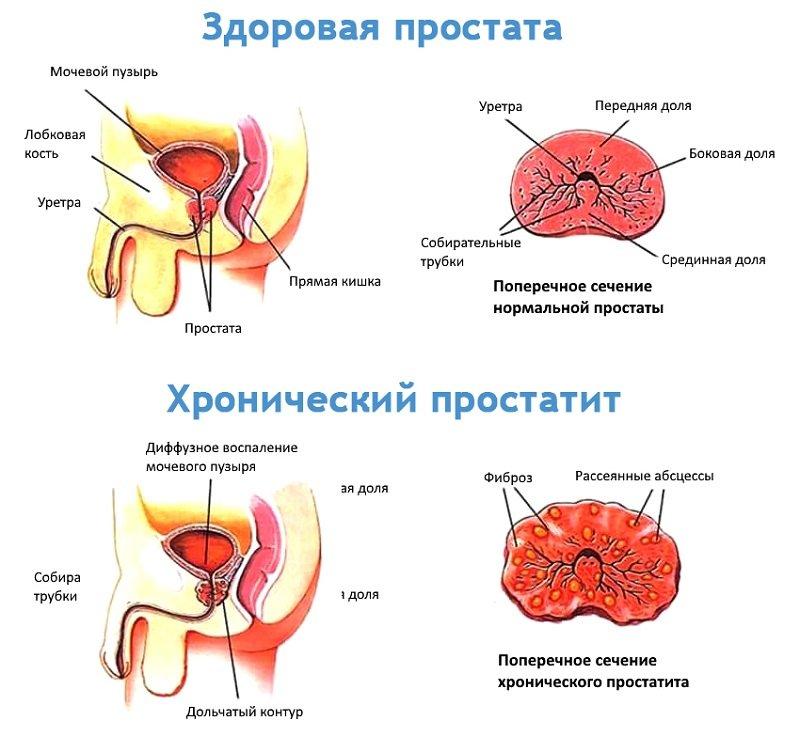 Причин возникновения простатита у молодых мужчин довольно много, поэтому не стоит думать, что воспаление в простате – возрастная патология.