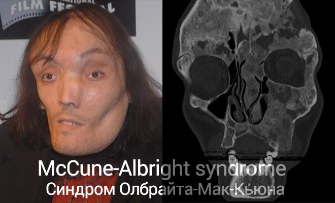 Заболевания Олбрайта-Мак-Кьюна