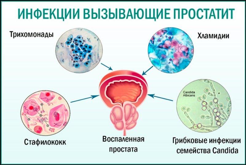 Инфекционный простатит как передается можно ли с помощью узи определить простатит