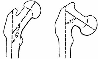 Варусная деформация шеечно-диафизарного угла