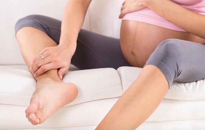 отеки при беременности