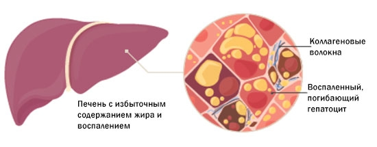 НАЖБП в стадии стеатоза