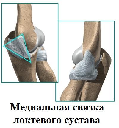 Вывих костей предплечья с повреждением костных стабилизаторов